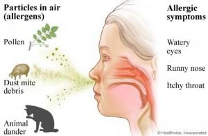 allergic-rhinitis1